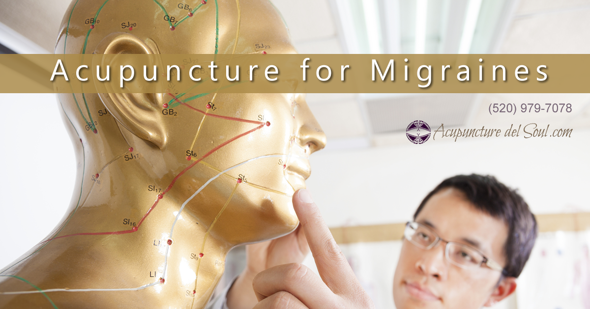 Acupuncture for MIgraine Headaches